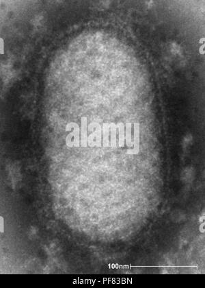 Ultrastructural details of an Orf virus revealed in the negative-stained transmission electron microscopic (TEM) image, 2004. Image courtesy Centers for Disease Control (CDC) / Dr A. Likos. () - Stock Photo