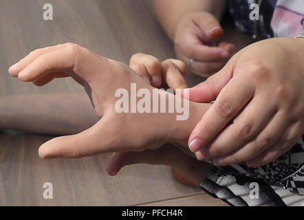 Veliky Novgorod, Russia. 21st Aug, 2018. VELIKY NOVGOROD, RUSSIA - AUGUST 21, 2018: A modular bionic prosthetic hand received by Maria Gaidukova, 9, born with a congenital hand malformation, after two weeks of tests; developed by Veliky Novgorod's Tekhbionik scientific research company led by engineer Stanislav Muravyov (not pictured), and unparalleled in Russia, the prosthesis features three different grip patterns controlled by electrical impulses in an operator's muscles. Alexander Demianchuk/TASS Credit: ITAR-TASS News Agency/Alamy Live News - Stock Photo