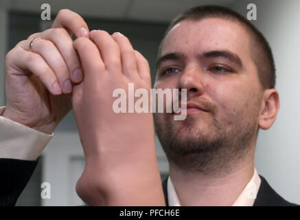 Veliky Novgorod, Russia. 21st Aug, 2018. VELIKY NOVGOROD, RUSSIA - AUGUST 21, 2018: Veliky Novgorod's Tekhbionik scientific research company led by engineer Stanislav Muravyov (pictured) has developed a modular bionic prosthetic hand for Maria Gaidukova, 9, born with a congenital hand malformation; unparalleled in Russia, the prosthesis features three different grip patterns controlled by electrical impulses in an operator's muscles. Alexander Demianchuk/TASS Credit: ITAR-TASS News Agency/Alamy Live News - Stock Photo
