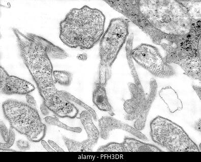 Ultrastructural details of the mumps virions grown in a Vero cell culture, revealed in the transmission electron microscopic (TEM) image, 1977. Image courtesy Centers for Disease Control (CDC) / A. Harrison and F. A. Murphy. () - Stock Photo