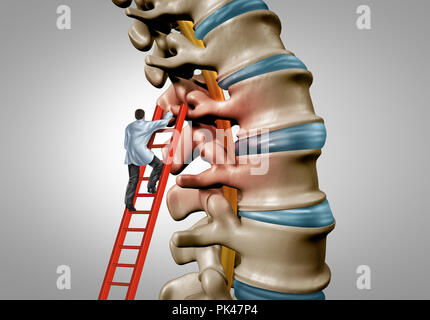 Spine therapy and spinal stenosis medical surgery concept as a degenerative illness surgery in the human vertebrae as a doctor treating . - Stock Photo