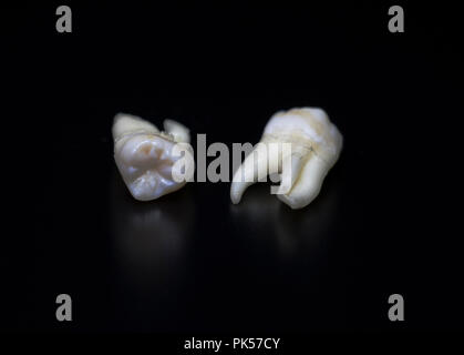 Adult teeth, extracted wisdom teeth reflecting on a black background. Human Anatomy bones and teeth. Tooth decay. - Stock Photo