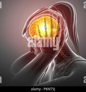 Woman with headache, computer illustration. - Stock Photo