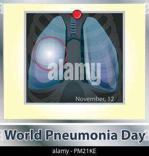 Symbol lung disease. Breathing. Respiratory system. Respiratory disease - cancer asthma, tuberculosis, pneumonia . World Pneumonia Day. Health care. X-ray of the lungs - Stock Photo