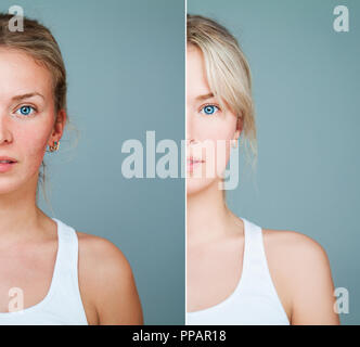 Healthy and Unhealthy Skin Concept. Young Model Woman with Skin Problem. Facial Treatment, Skincare, Medicine and Cosmetology Concept - Stock Photo