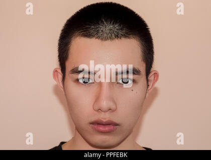 Young man with beautiful face after treatment from acne and pimple, After of face with out of scars and wrinkle by acne removal. Smooth skin by treatm - Stock Photo