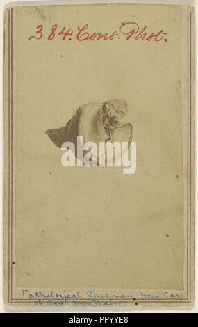 Pathological Specimen from case of Genl. Max Weber. Civil War victim; American; 1862 - 1864; Albumen silver print - Stock Photo