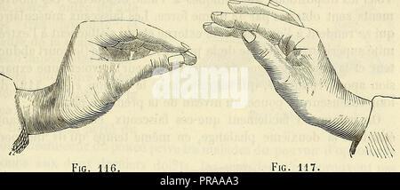 'De l'électrisation localisée et de son application a la pathologie et a la thérapeutique' (1861)