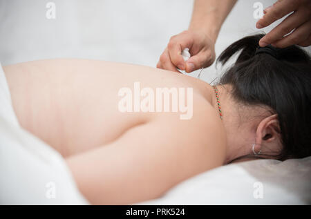 Young woman getting acupuncture treatment in therapy room. Close up - Stock Photo