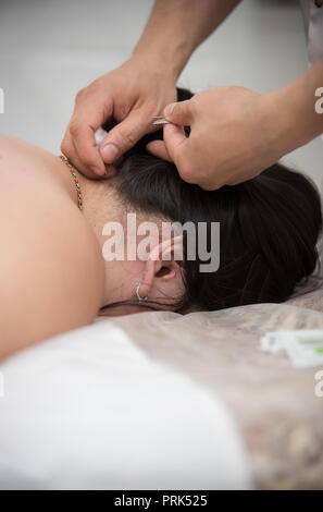 Young woman getting acupuncture treatment in therapy room - Stock Photo