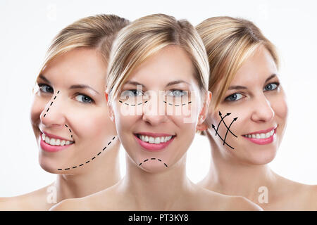 Multiple Exposure Of Happy Young Woman With Correction Lines On Her Face - Stock Photo