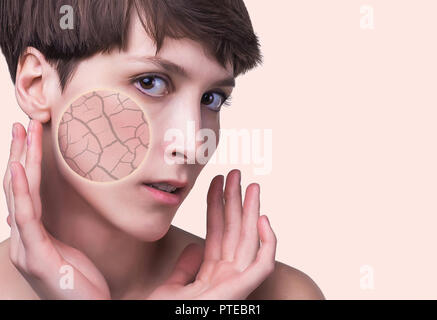 Woman face covered with cracked earth texture- symbol of dry skin - Stock Photo