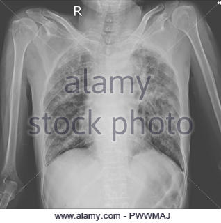 Chest x-ray showing Interstitial pulmonary infiltration with dry cavities both lungs.Impression : Pulmonary tuberculosis. - Stock Photo