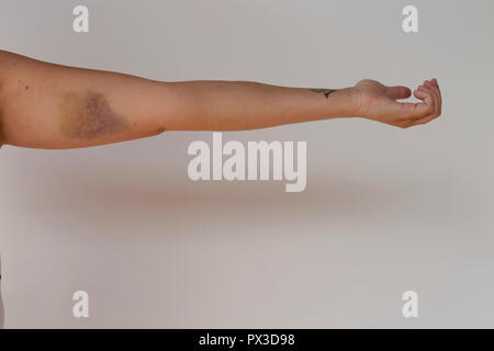 Bruise or hematoma on an arm - Stock Photo