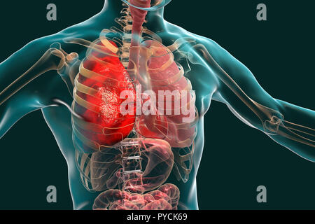 Pneumonia, illustration. Pneumonia is an inflammatory condition of the lung. - Stock Photo