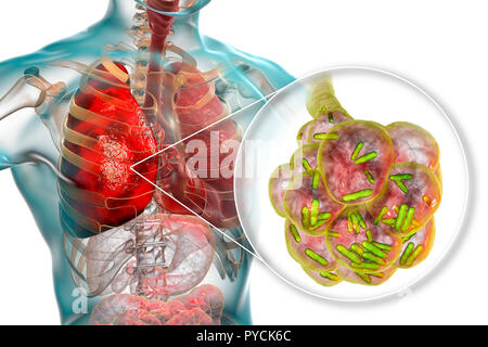 Bacterial pneumonia. Computer illustration of rod-shaped bacteria (bacilli) inside the alveoli of the lungs, causing a lower respiratory tract infection. This is more generally known as pneumonia, though that term can also be reserved for specific types of infection. Severe lung infections are diagnosed by X-ray and treated by antibiotics. The alveoli are the site of gaseous exchange between the air in the lungs and the blood. - Stock Photo