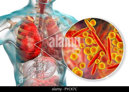 Pneumonia caused by Mycoplasma pneumoniae bacteria, conceptual computer illustration. Mycoplasmas are the smallest cellular organisms known (diameter  - Stock Photo