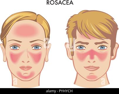 vector medical illustration of the symptoms of rosacea - Stock Photo