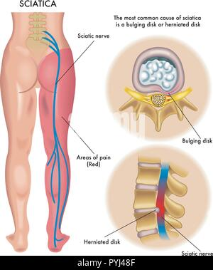 medical illustration of symptoms of sciatica - Stock Photo