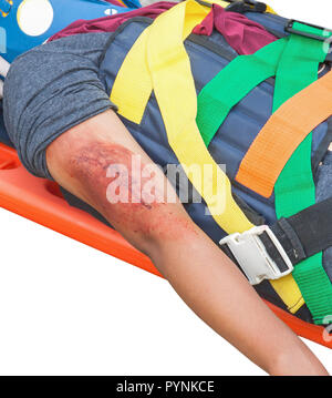 patient Injury upper arm in stretcher isolated on white background and clipping path - Stock Photo