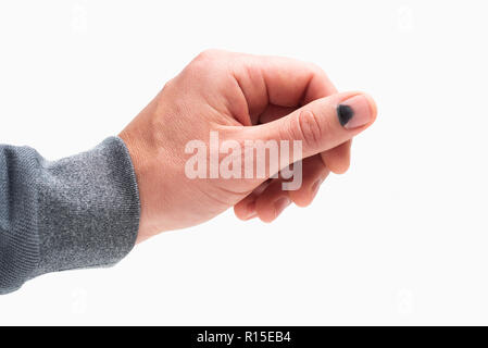 Black nail. Hammer on the thumb. Pain and hematoma after injury. Male hand isolated on white background - Stock Photo
