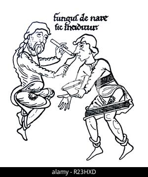 Drawing of the mediaeval treatment of a nasal affliction. The text above is 'Fungus de nase sic inciditur' which translates to 'Thus polypus is cut out of the nose'. Dated 12th Century - Stock Photo