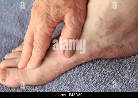 Man has dry, flaking skin on foot - Stock Photo