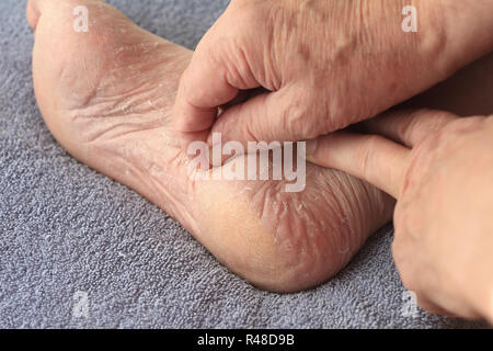 A man peeling dry skin from his foot - Stock Photo