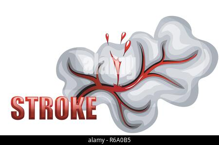 illustration of a rupture of the vessel. hemorrhagic stroke. insult. red blood cells. - Stock Photo
