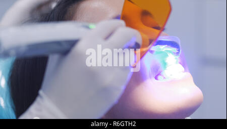 Dentist using dental curing UV lamp on teeth of patient - Stock Photo