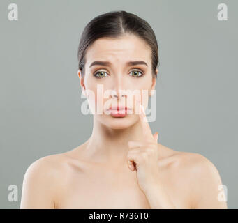 Young woman with acne pimple. Female skin problem. Facial treatment, cosmetology and skincare concept - Stock Photo