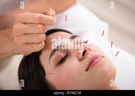 Beautiful Woman Getting Acupuncture Treatment - Stock Photo