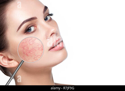 magnifying glass showing couperose on womans face - Stock Photo