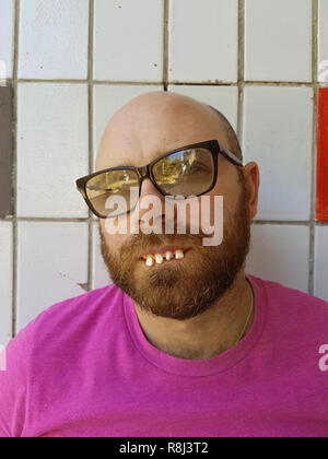 Bald man in eyeglasses with ugly teeth - Stock Photo