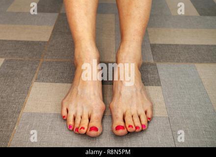 peeling of skin on feet - Stock Photo