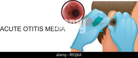 vector illustration of the study of the ear in otolaryngology. - Stock Photo