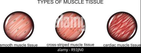 vector illustration of types of muscle tissue - Stock Photo