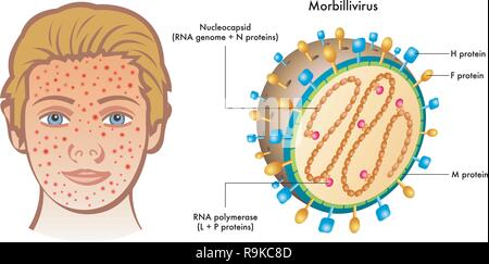 Cutaway labelled diagram of Morbillivirus with illustration of boy showing symptoms on face, white background. - Stock Photo