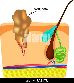 The structure of the papilloma. The structure of the skin. Infographics. Vector illustration on isolated background - Stock Photo