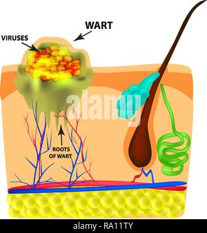 The structure of the wart. The structure of the skin. Infographics. Vector illustration on isolated background - Stock Photo