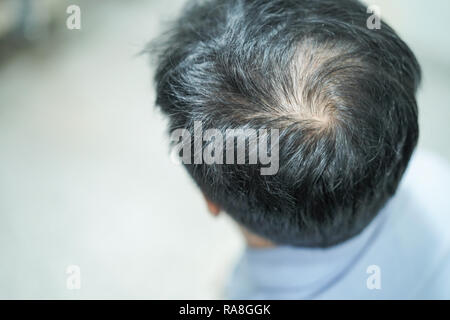 Bold in the middle head and begin no lose hair of mature Asian business smart active office man. - Stock Photo