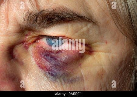 Woman with a black eye also called a periorbital hematoma. - Stock Photo