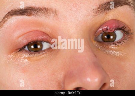 Close up picture of upper eyelid inflammation - chalazion - young female suffering from viral infection - Stock Photo