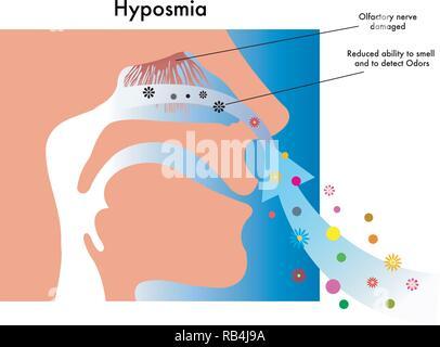 Symbolic medical illustration of symptoms of hyposmia - Stock Photo