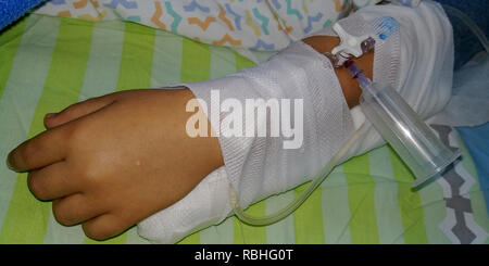 A child is connected to an intravenous infusion before an operation - Stock Photo