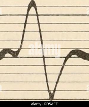 . Elektrophysiologie menschlicher Muskeln. Electrophysiology. Abb. 19. Aktionsstrom vom weißen Muse. Gastrocnemius des Kaninchens bei Reizung des motorischen Nerven mit einem einzelnen Induktionsschlag und Ableitung vom Muskel mit einer Elektroden- distanz von 15 mm. (Nach Kohlrausch.) Stimmgabel: 250 Schwingungen pro Sekunde.. Abb. 20. Dasselbe vom roten Milsc. soleus. Längere Dauer des Aktionsstroms und größere Zeitdistanz der (iipfelpunkte, als in Abb. 19. ('Nacli Kohlrausch.i Pflanzungsgeschwindigkeiten der Kontraktionswellen zueinander stehen. Vergleiche der doppelphasischen Ströme vom Ga - Stock Photo