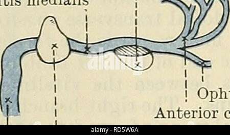 . Cunningham's Text-book of anatomy. Anatomy. 1038 THE VASCULAE SYSTEM. the latter becomes the left vena advehens, persists until birth and, after the disappearance of the ri°ht lateral umbilical vein, it conveys the blood from the placenta to the liver, where part of the placental blood passes into the left vena advehens and so through the left vena revehens to the inferior vena cava, and part passes into the ductus venosus, by which it reaches that portion of the cephalic part of the right vena advehens which becomes the cephalic or upper end of the permanent inferior vena cava. After birth  - Stock Photo