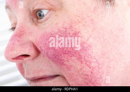 Portrait of unhappy elderly woman suffering skin disease rosacea with no make-up Stock Photo