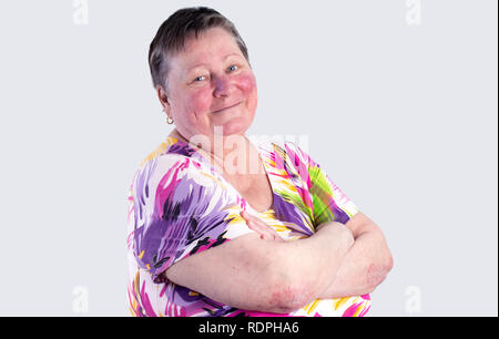 Portrait of smiling elderly woman facing two skin diseases as rosacea and psoriasis vulgaris, no make-up - Stock Photo