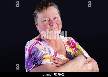 Portrait of unhappy elderly woman facing two skin diseases as rosacea and psoriasis vulgaris, no make-up - Stock Photo